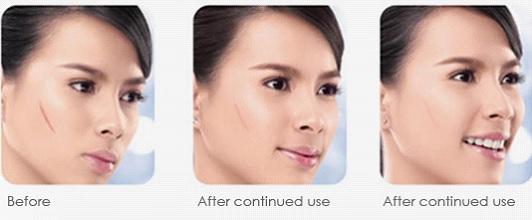 Hình ảnh sẹo trước và sau khi sử dụng sản phẩm