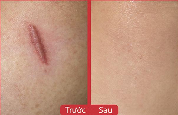 Kem trị sẹo Rejuvasil 10ml xóa sạch dấu vết của sẹo