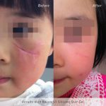 rejvuasil-before-and-after-child-facial-scar