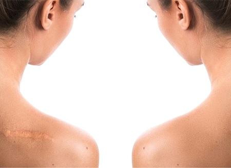 Khắc phục khiếm khuyết cho vùng da bị sẹo với Kem trị sẹo Scar Esthetique