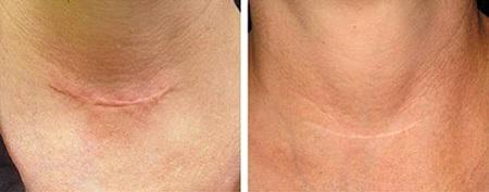 Kem Scar Esthetique với tác động mạnh mẽ giúp đẩy lùi tình trạng sẹo hiệu quả