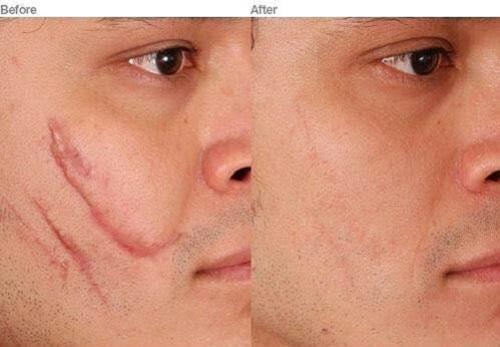 Khách hàng trước và sau khi sử dụng Scar RejuvaSil® 30 mL