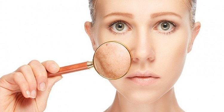 6 cách trị sẹo lõm hiệu quả ngay tại nhà bằng nguyên liệu tự nhiên