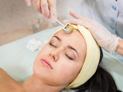 Điều trị sẹo bằng phương pháp lăn kim có thực sự hiệu quả không?