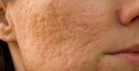 Da mặt bị rỗ: Nguyên nhân và cách điều trị dứt điểm