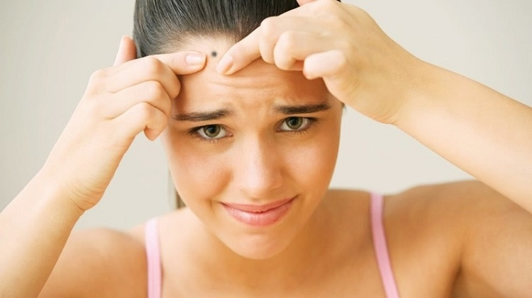 Tẩy nốt ruồi sau bao lâu thì lành và hết sẹo?