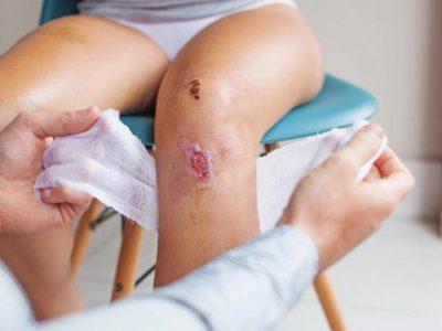 Vết bỏng bô bị chảy nước vàng liệu có nhiễm trùng?
