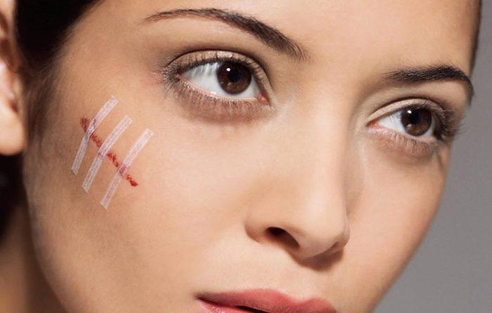 4 cách trị sẹo khâu trên mặt sau cắt chỉ không thâm, không để lại sẹo