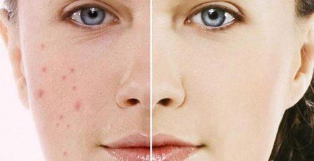 5 tuyệt chiêu giúp xóa sẹo thâm cấp tốc bạn nên áp dụng ngay