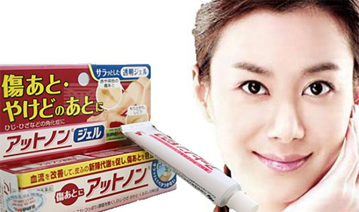 Kem trị sẹo Kobayashi của Nhật Bản có tốt không? Giá bao nhiêu?