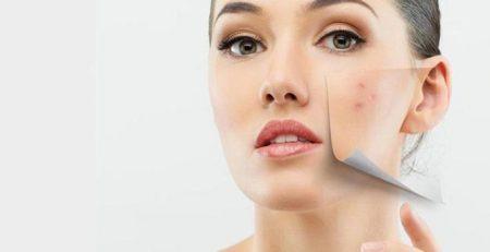 Sẹo mụn là gì? 4 cách trị sẹo mụn lâu năm bằng phương pháp tự nhiên