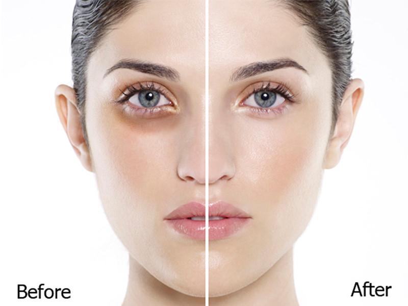 Tạm biệt đôi mắt thâm quầng với Rejuvaskin® Eye Cream