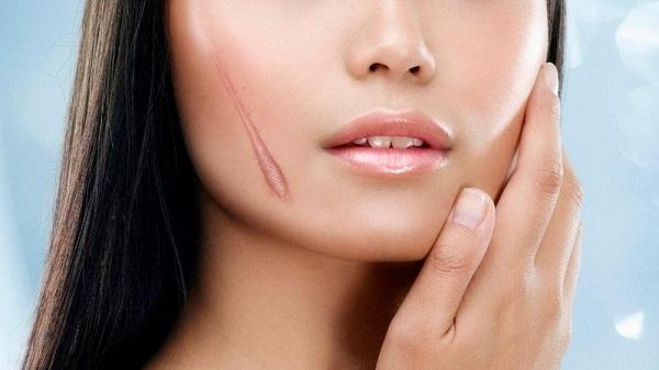 So sánh hiệu quả của kem trị sẹo Rejuvasil 1